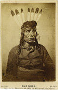 Photography:CDVs, CARTE DE VISITE OF CUT NOSE. One of the most violent and deadly clashes occurred in 1862, in and around New Ulm, Min... (Total: 1 Item)