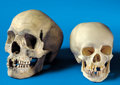 Medical:Osteology , HUMAN SKULLS - MEDICAL ODDITIES. ... (Total: 2 Items)